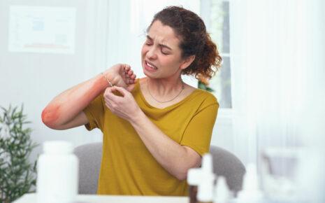 alergia na nikiel w biżuterii
